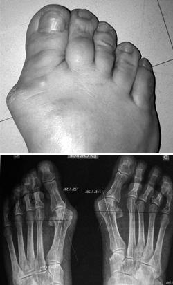 arthrose du pied que faire