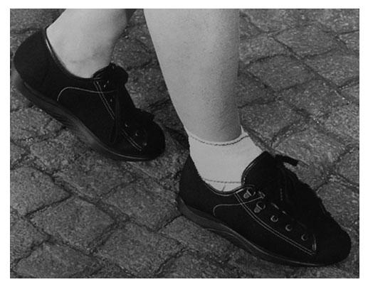 Hallux rigidus - Pied en bois pour chaussure ...