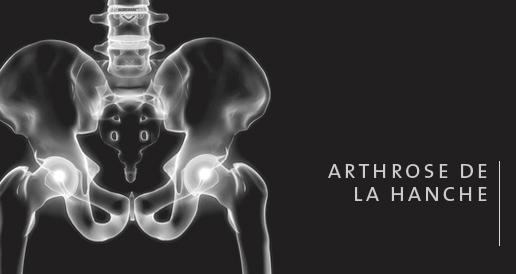 l 39 arthrose de la hanche proth se totale de la hanche par voie ant rieure. Black Bedroom Furniture Sets. Home Design Ideas