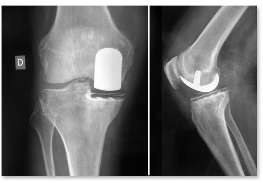 """Résultat de recherche d'images pour """"prothèse du genou"""""""
